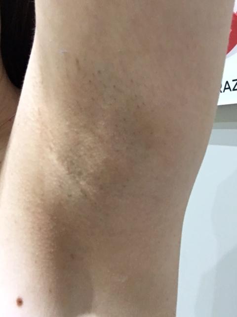 underarm 2